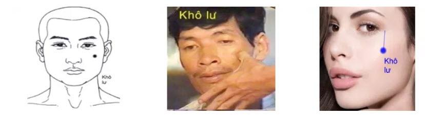 Huyệt Khô Lư